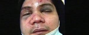 Vhong Navarro, ipina-blotter dahil sa reklamong attempted rape ng 22-anyos na babae